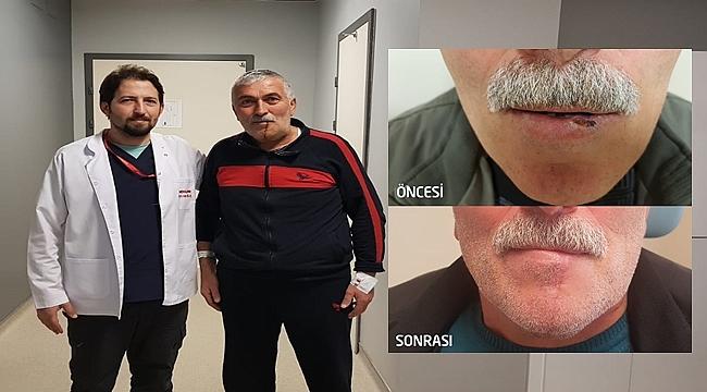 Uçuk sandığı dudak yarası kanser çıktı